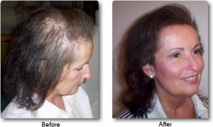 alopecia areata topical corticosteroids